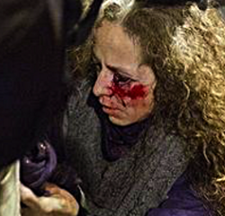 A woman loses sight in one eye after brutal police charges in Barcelona