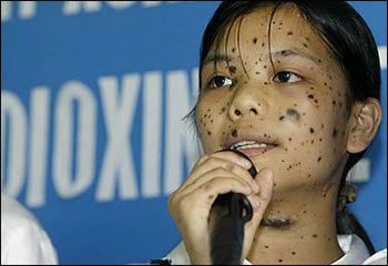 """Vietnamese Victim of Agent Orange American Chemical Attack Most available pictures are too horrendous for this website Search for """"Agent Orange victims Vietnam"""" images in Google Waiting for an Army to Die: The Tragedy of Agent Orange"""