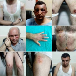 torture-collage